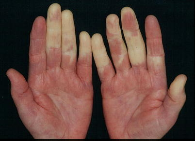 Image shows Raynaud's syndrome